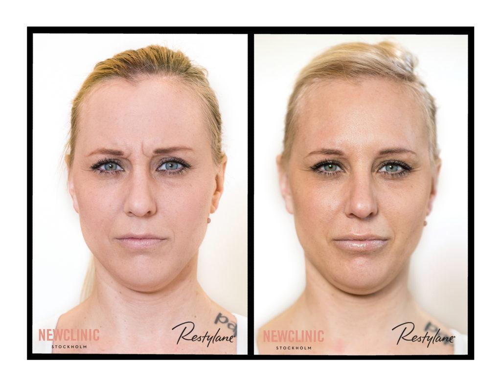 botox behandlingar resultat