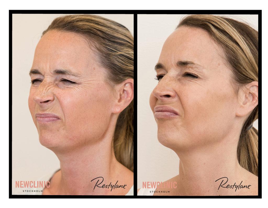 Botox behandling resultat