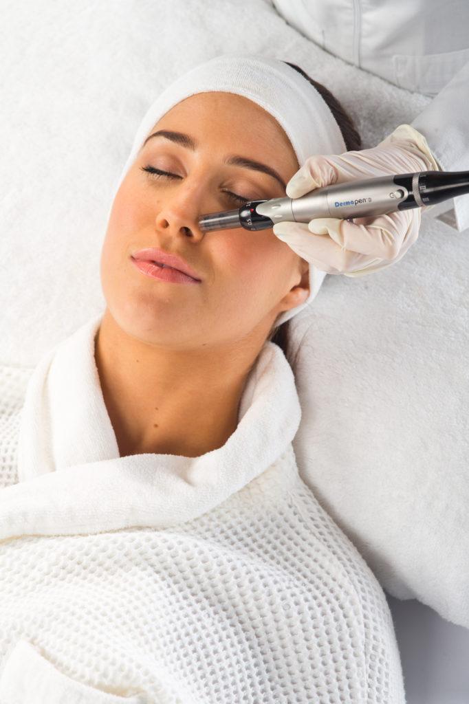 hudvårdsbehandling med Dermapen