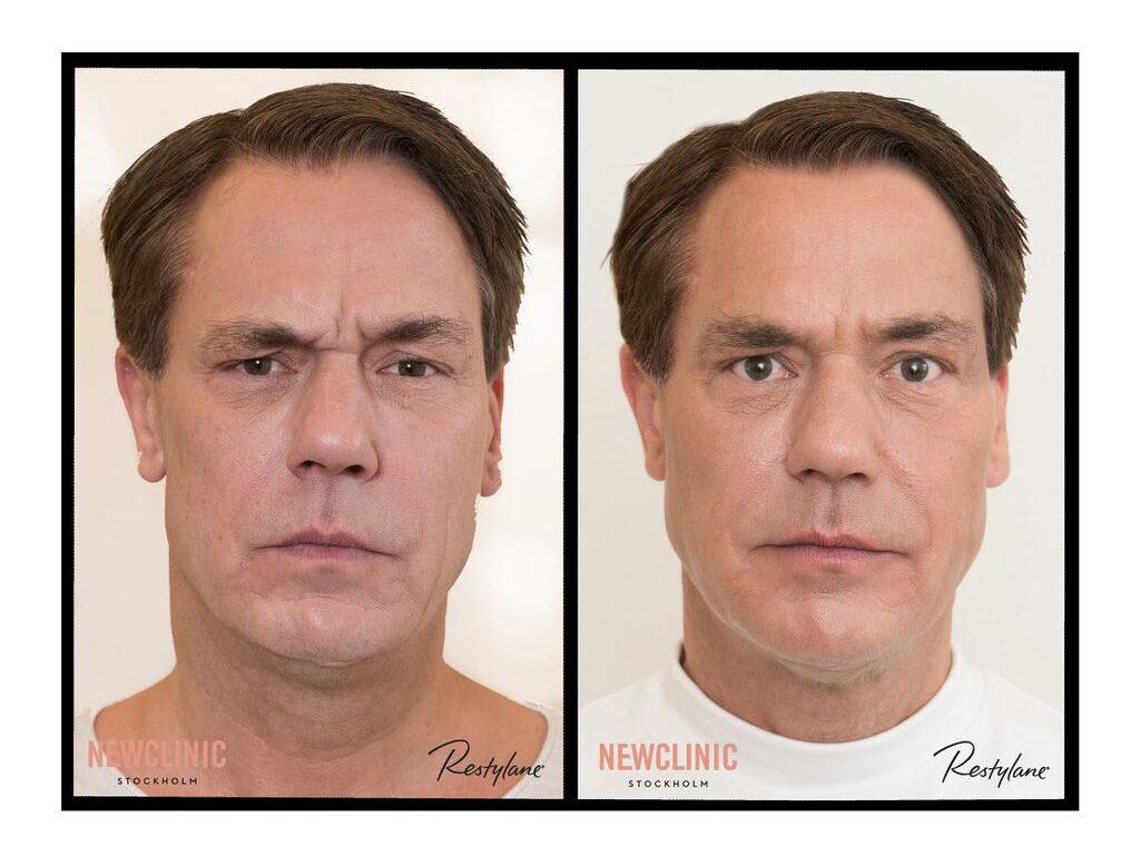 Botoxbehandlingar i Stockholm