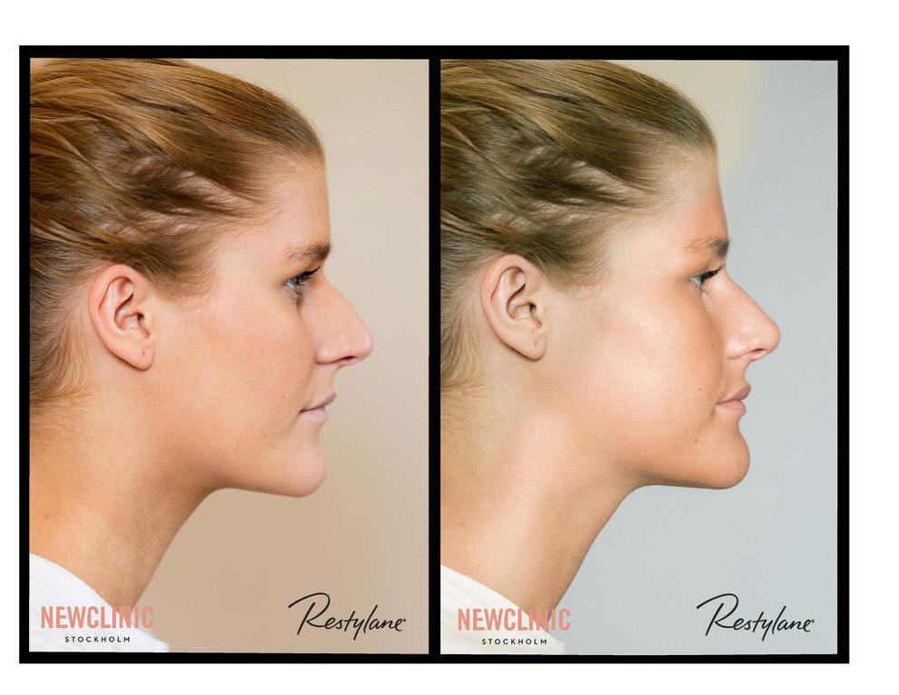 Före och efter bilder behandling näsa
