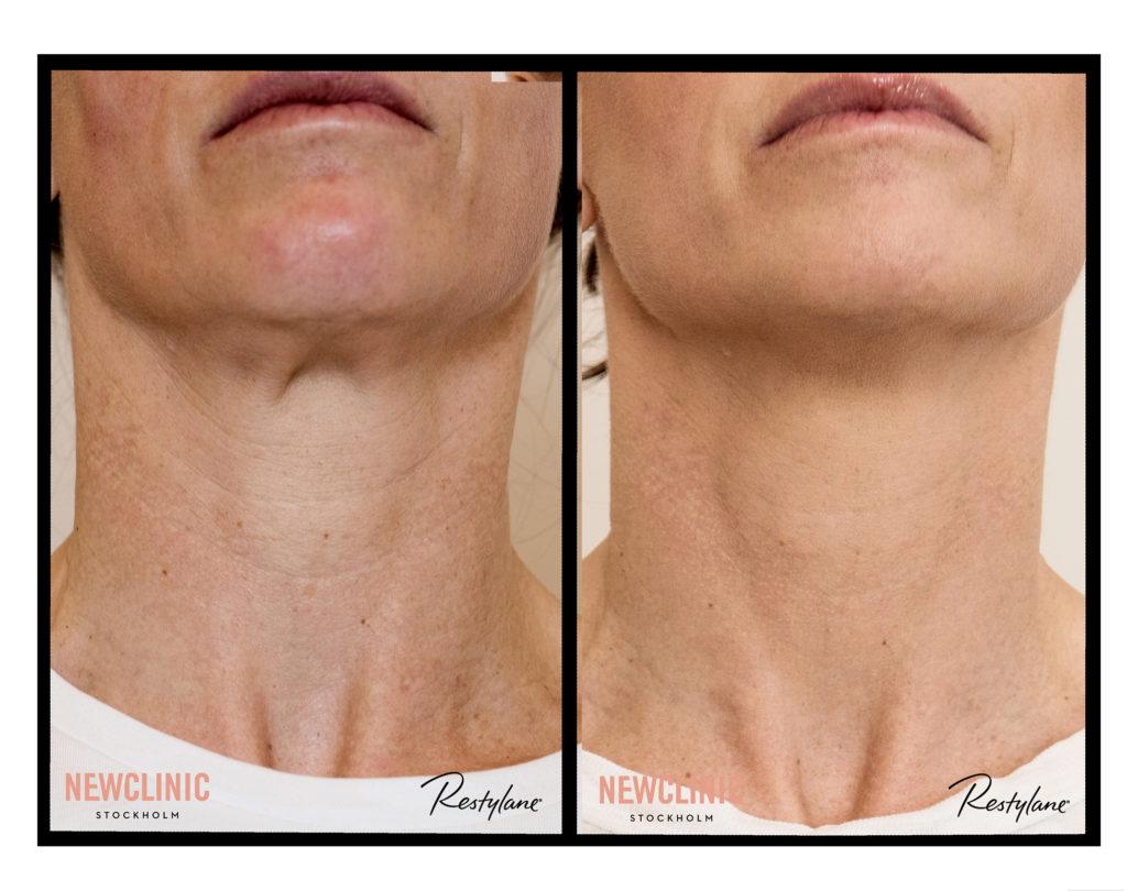 Resultat skinbooster på halsen