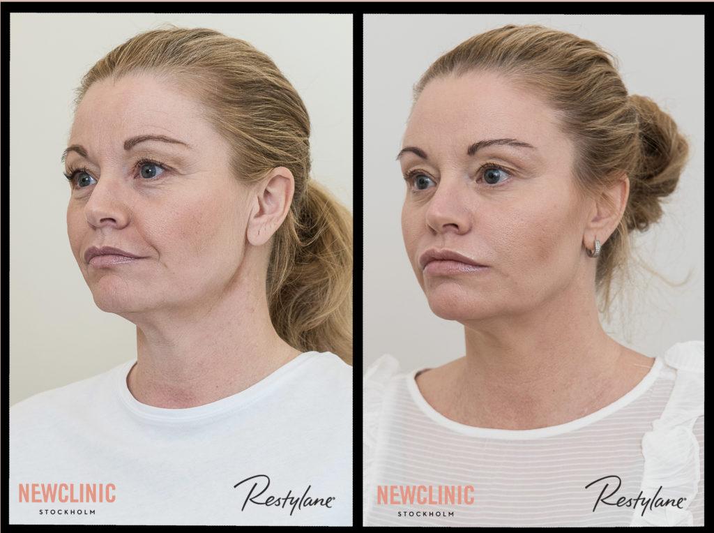Botox behandlingar före och efter bilder