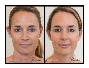Botox behandling i Stockholm