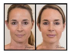 resultat hudföryngring