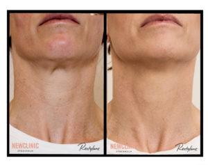 Före och efter bilder resultat skinbooster