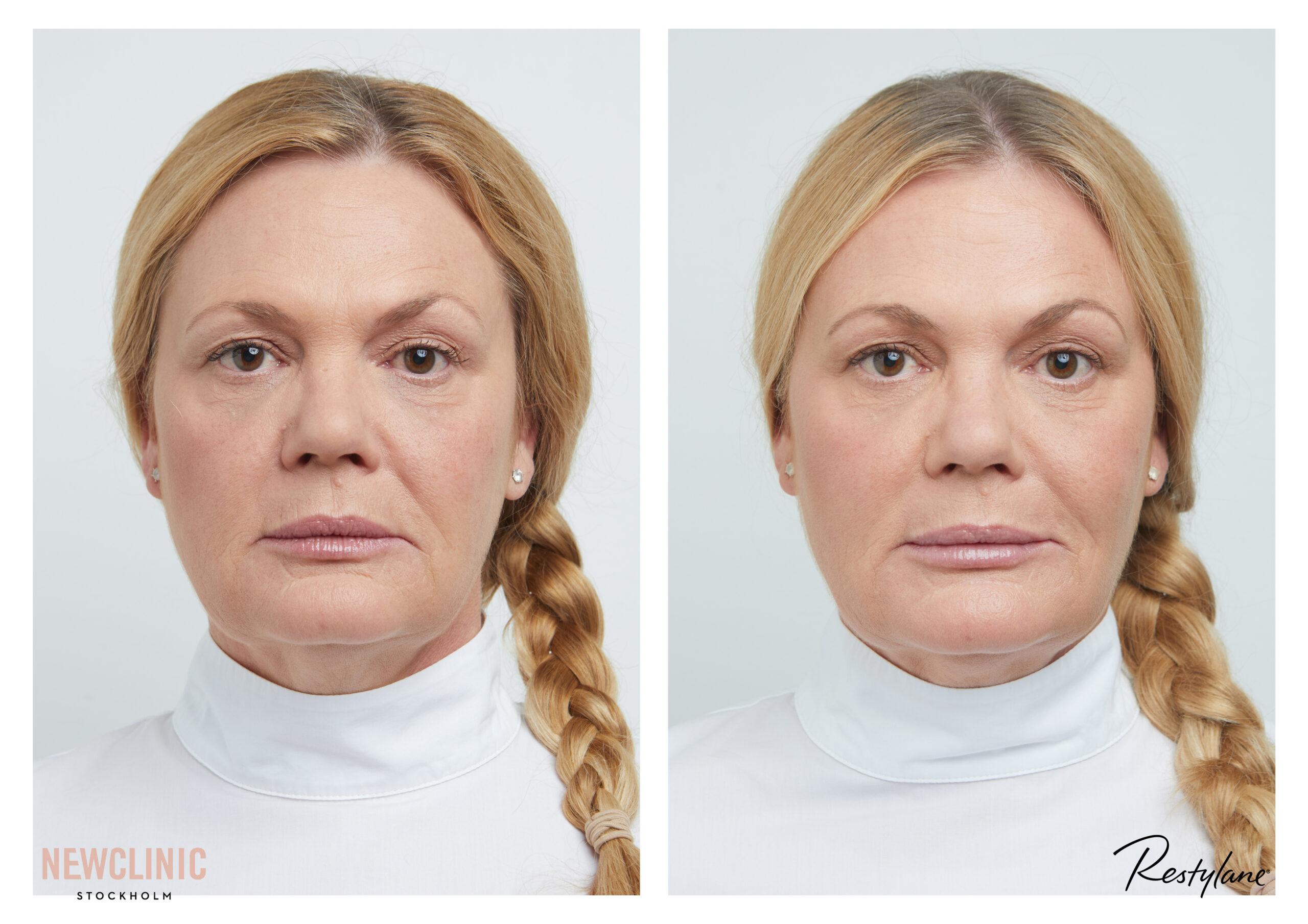 före och efterbilder skönhetsbehandling