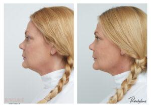 före och efter bilder skönhetsbehandlingar stockholm stureplan
